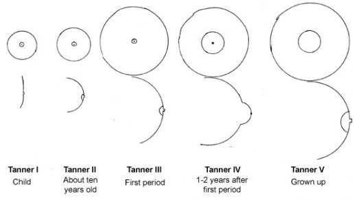 Tanner stages of breast maturation